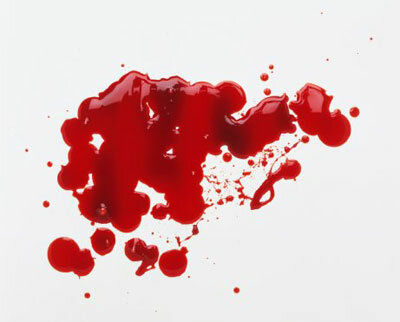 How Bloodstain Pattern Analysis Works Howstuffworks