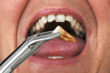 Tooth Extraction Howstuffworks