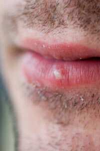 Canker Sores: Causes & Treatments | Live Science