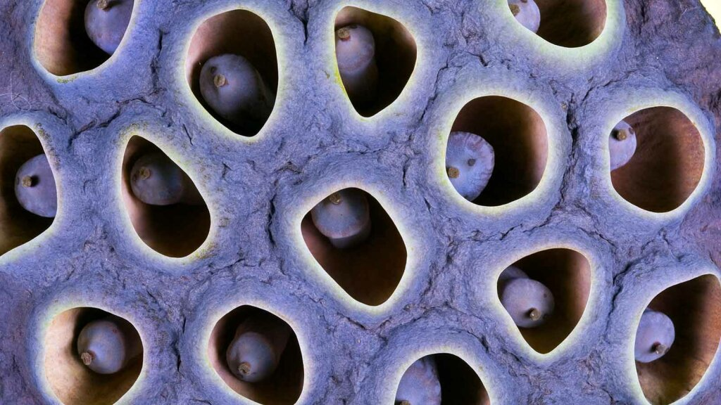 Why Are People With Trypophobia Horrified By Holes Howstuffworks