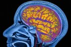 Top 10 Myths About the Brain