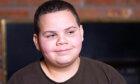 Childhood Obesity Quiz