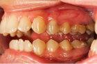 Is gingivitis contagious?