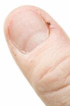 Hangnail Tips and Treatments