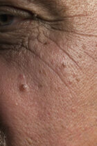How often should you see your dermatologist?