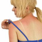 Preventing Sunburn 101