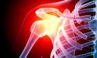 Pain Medication Q & A