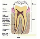 How Cavities and Fillings Work