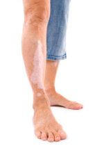 Skin Discoloration Basics