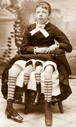 Corbin's extra pair of legs belonged to her undeveloped dipygus twin.