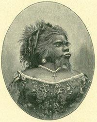 Julia Pastrana's beardedness was a result of a congenital disorder.