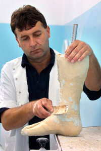 A prosthetist uses body measurements to construct a prosthetic limb that will fit the patient properly.
