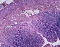 A microscopic view of an inflamed appendix.