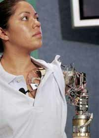 "Claudia Mitchell, the world's first ""bionic woman."""