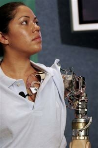 """Claudia Mitchell with her """"bionic arm."""""""