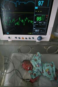 A premature baby undergoes treatment at Xining Children Hospital in China.