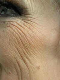 Smoking causes wrinkles around the eyes, called crow's feet.