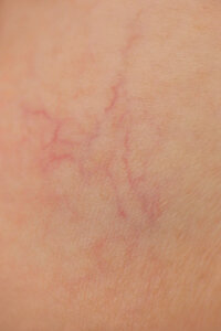 Skin Problems Image Gallery Broken capillaries show up under the skin as reddish lines that don't fade away. See more skin problem pictures