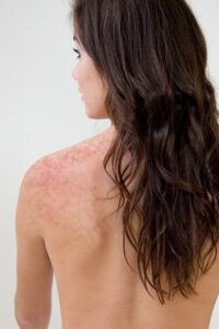 Could that redness be caused by her cleanser? See more skin care ingredient pictures.