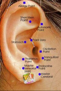 Some believe that an ear staple will suppress a person's appetite.