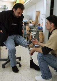 Flex funds can be used to pay for prosthetics not covered by insurance.