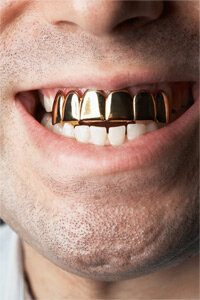 """This gold teeth grill brings new meaning (and flash) to the phrase """"megawatt smile."""""""