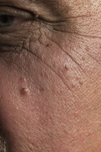 Beautiful Skin Image Gallery Moles are something you should keep an eye on. See more pictures of getting beautiful skin.