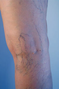 Some lifestyle changes, like exercise, may help alleviate spider veins. See more pictures of skin problems.