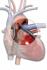 A coronary bypass reroutes the clogged artery with an alternate vein mined from the leg or chest. See more pictures of the heart.