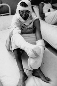 Egyptian soldier burned by napalm during Arab-Israeli war, being cared for at Helmia Military Hospital