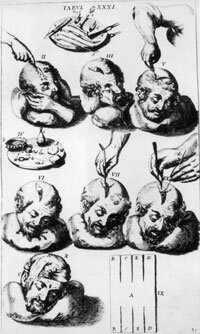 A circa 1600 instructional illustration for trepanning a skull. See more pictures of the brain.