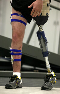 Person with prosthetic limb doing physical therapy