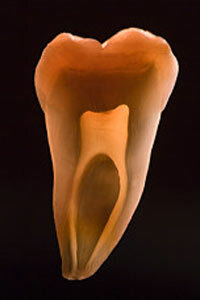 During a root canal, your dentist cleans out the interior of the tooth, shown here in a cross section.