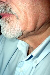 Close-up of older man's jawline and neck showing effects of aging and skin elasticity. See more pictures of skin problems.