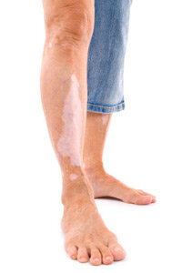 Vitiligo is a condition in which the cells that make melanin stop working or die out, causing patches of lighter skin. See more pictures of skin problems.