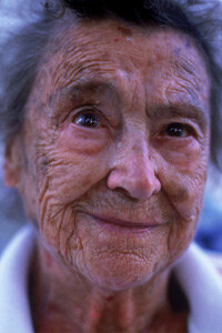 Sun spots are more common in older people, but young people can get them too. See more pictures of skin problems.