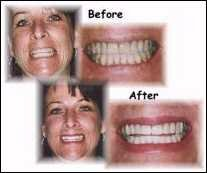 Porcelain veneers in combination with a gum-lift procedure (see below) helped this smile.