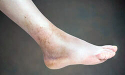 Both ankle fractures and sprains cause swelling and bruising, and can force you off your feet for long periods of time.