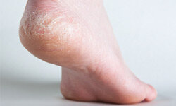 You don't need pedicures to have healthy feet, but adding some moisture to dry, cracked heels would be a good start.
