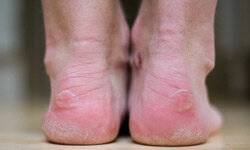While powder keeps your feet dry, you'll need a lubricant like petroleum jelly to keep blisters at bay.