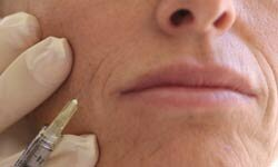 Botox injections can help address lines in the face.