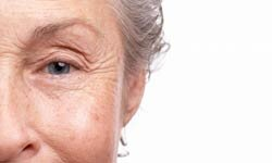 Filler injections can address deeper lines that Botox may not be able to smooth.