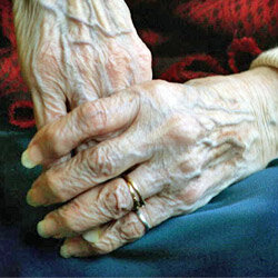 It's normal for nails to become thinner or more brittle in a person's senior years. See more pictures of skin problems.