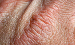 Dry skin is another bothersome problem that often comes with age.