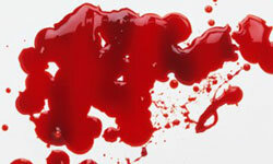 Red ink stains can be very difficult to remove.