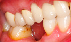 Plaque and tartar buildup on the teeth where they meet the gums can lead to puffy, reddish inflammation called gingivitis.