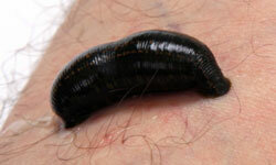 Leeches have been used in medical procedures since ancient times. Sometimes effectively, sometimes not.
