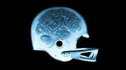 We're Finally Educating People About Risks for Sports Concussions
