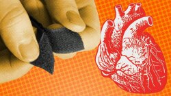 How to Fix a Damaged Heart: Ingenuity, Hard Work and Some Velcro