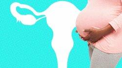 The Possibilities and Pitfalls of Uterine Transplants